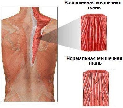 Симптомы и лечение миозита мышц в домашних условиях. Как лечить миозит медикаментозно и народными средствами?